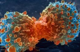 So, What Causes Cancer?