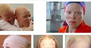Albinos