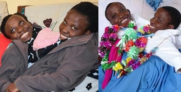 Tanzanian conjoined Twins