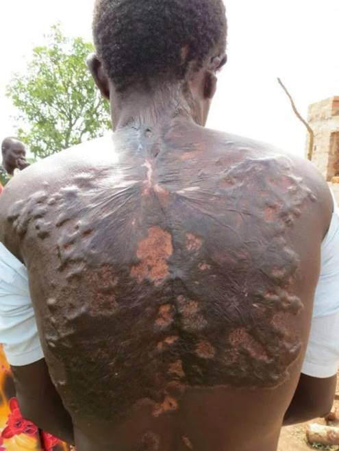 People hit by lightning reveal their scars which look like fern leaves (Photos)