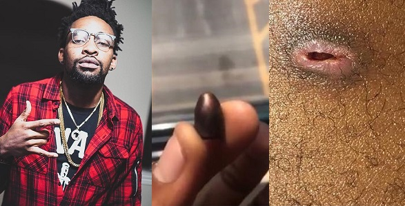 Image result for Bullet shot close to the spine of a Nigerian musician after two years finally comes out (Photos)