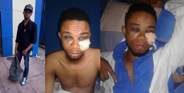 Image result for Man curses the Nigerian police for torturing him after a false accusation in Abia State.