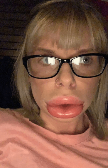 botched lip filler procedure
