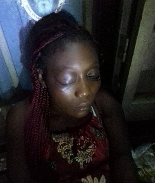 Young woman beaten
