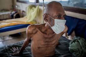 Tuberculosis (TB)-Lung disease