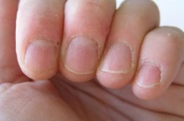 Treat Painful Peeling Cuticles Around Nails Naturally