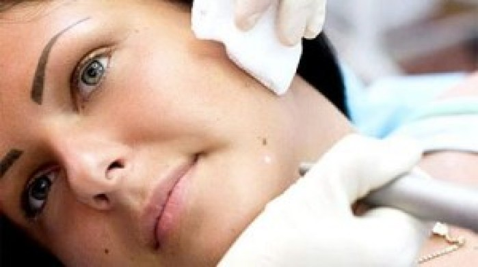 5 Tips To get rid of Moles On The Face