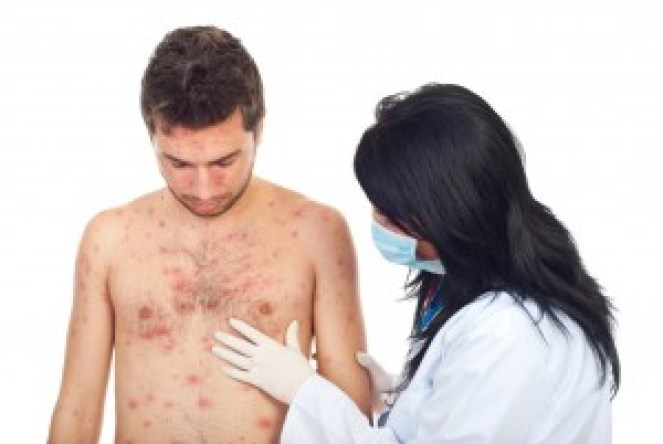 Causes and home remedies for psoriasis