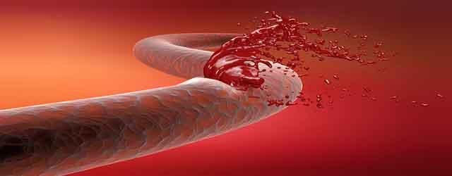 Symptoms Of Internal Bleeding
