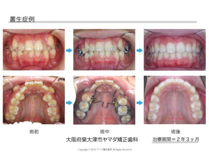 矯正治療症例 叢生 歯並びの不良 ヤマダ矯正歯科