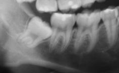 第3大臼歯