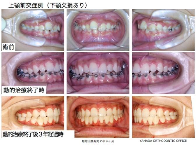 ヤマダ矯正歯科 上顎前突症例 下顎欠損歯あり