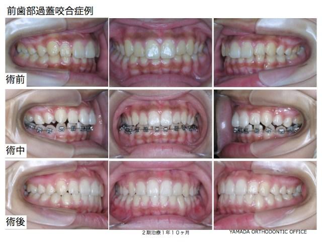 ヤマダ矯正歯科 過蓋咬合の症例