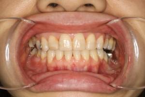 ヤマダ矯正歯科 矯正 治療例
