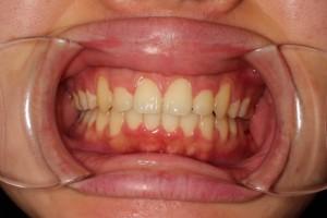 患者さんのコメント ヤマダ矯正歯科