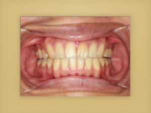 ヤマダ矯正歯科 装置撤去後患者さんのコメント