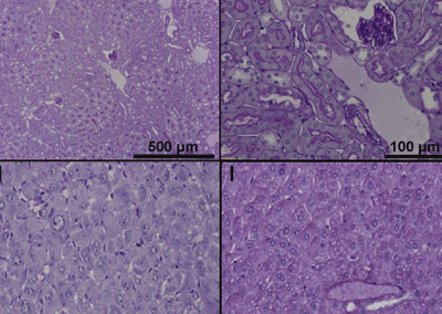 Recapitulation of Treatment Response to HBV Infection in FRG Mice