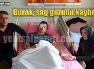 Eskala'da maganda kurşunu gözüne isabet eden Burak Yamaç tedavisi sürüyor