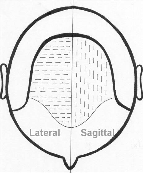 Lateral vs sagital