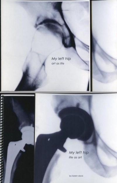My Left Hip: life as art, art as life - French Door style artist book
