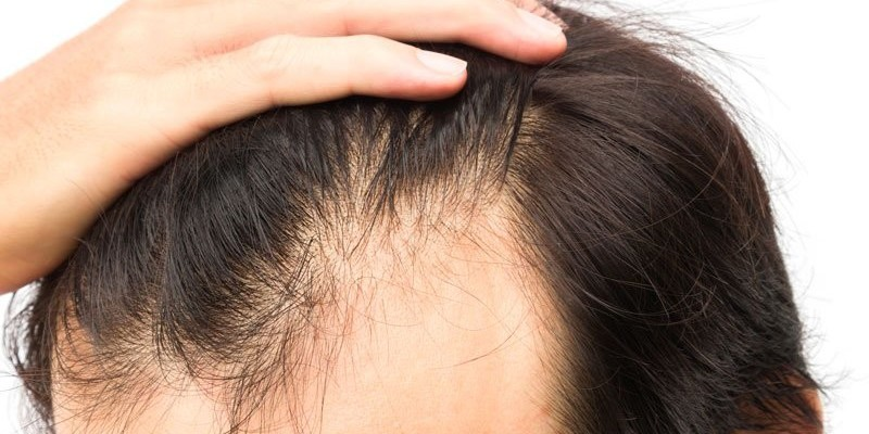 زراعة الشعر لتصغير الجبين والجبهة العريضة في تركيا