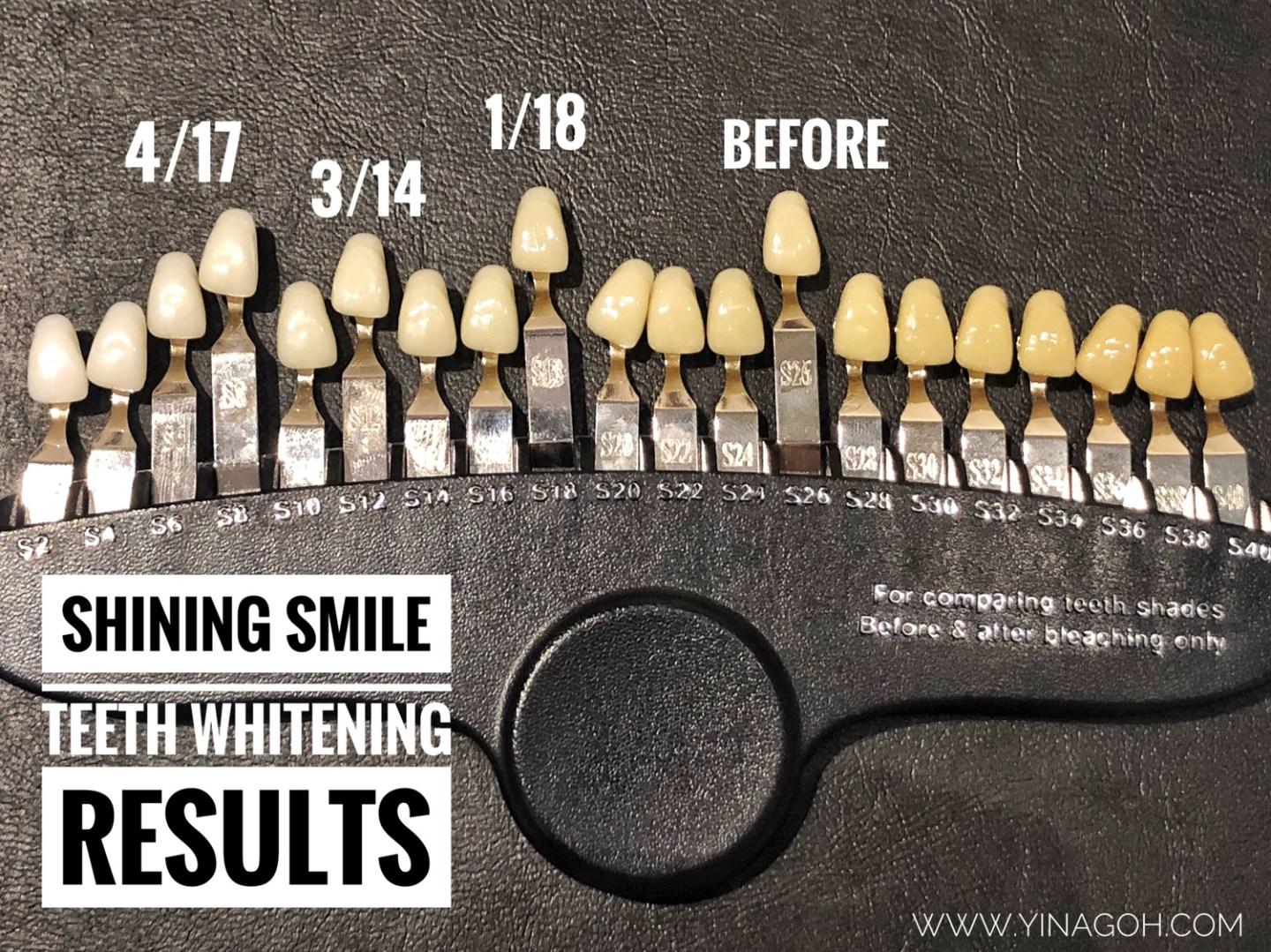Shining Smile Singapore teeth whitening results