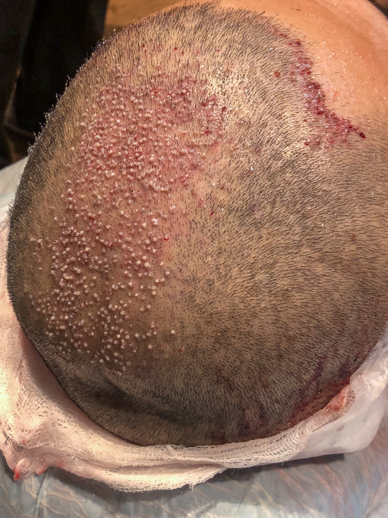 FUE Hair Transplant Singapore