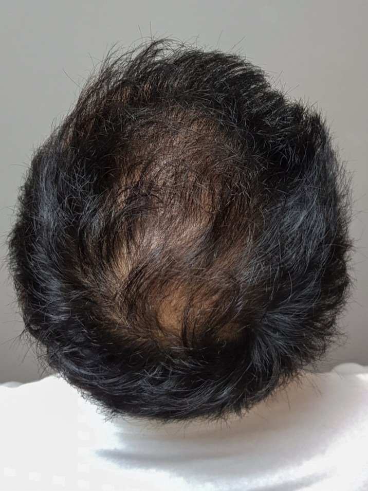 After FUE hair transplant (5 months) at Terra Medical Clinic, Singapore