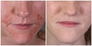 Red bumps line a patient's cheeks and chin (left). The same patient (right) with clear, pale skin.