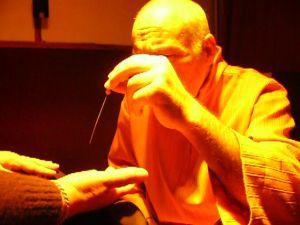 leczenie syst.akupunktura