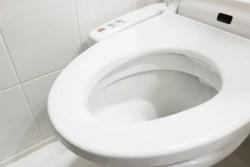 塩素系洗浄剤で落とせない便器の汚れとは?