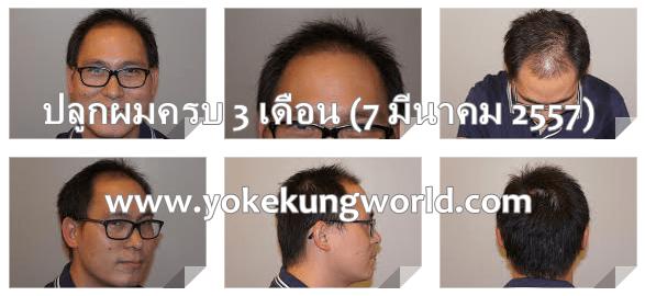 hair-3-months