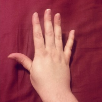 A weird contortion I do with my thumb when I'm bored. It looks only slightly odd to me but my boyfriend tells me to him it looks alarming.