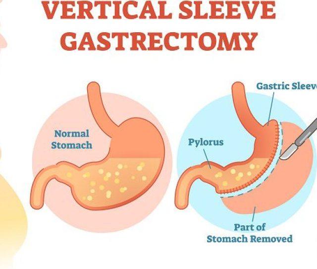 Gastric Sleeve Surgery Vertical Sleeve Gastrectomy