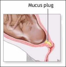 Mucus Plug Diagram