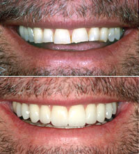 male dental patient smiling before and after smile makeover
