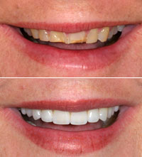 female dental patient smiling before and after smile makeover