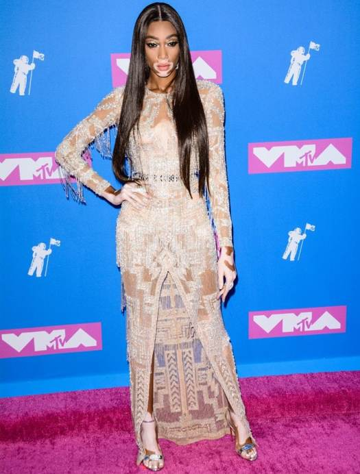 Winnie Harlow flaunted her sexy legs at the 2018 MTV Video Music Awards held at Radio City Music Hall in New York City on August 20, 2018