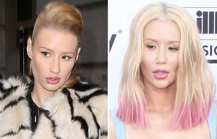 iggy azalea plastic surgery nose job chin implant