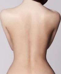 ipl enthaarung nacken rücken