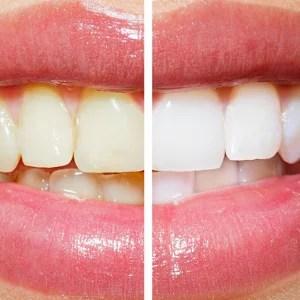 Zahn, Zahnschmelz