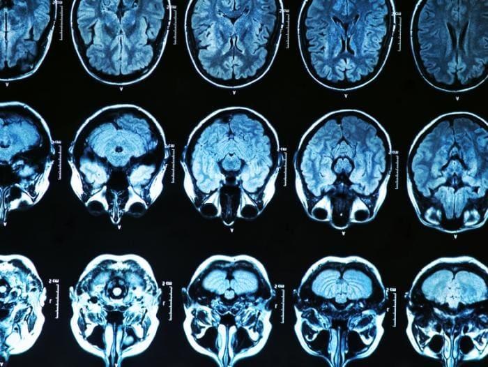 Μελέτη επικυρώνει την «εξέταση εκλογής» για τον εντοπισμό πρώιμων σημείων της νόσου Alzheimer