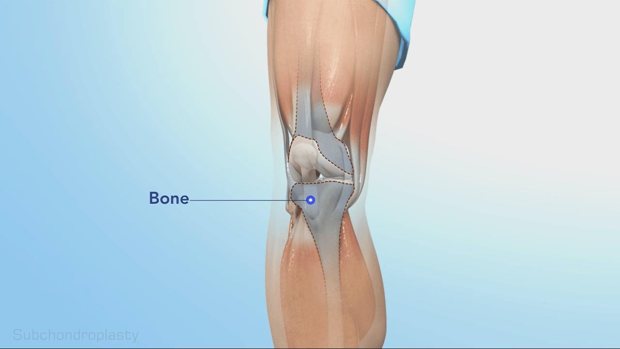 Just Below Knee Bone