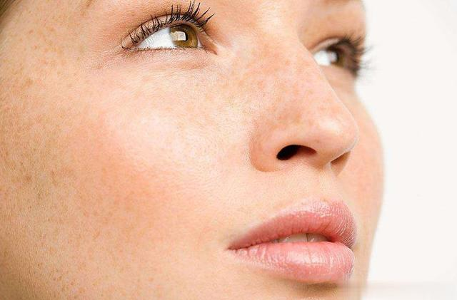 Freckles are generally caused by heredity or sun exposure.  Generally, laser and picosecond can be used to remove. Picosecond is a kind of laser. It has a powerful smashing effect on melanin and damages the skin less than traditional laser, but the price is relatively expensive.  Sunscreen must be done after picoseconds, otherwise it will relapse, needless to say, everyone knows the importance of sunscreen.  Also, be sure to find a reliable hospital.