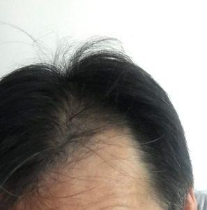 hair-restoration3
