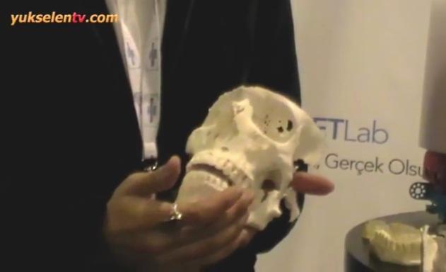 istanbul-üniversitesi-tetlab-kurukafa-3d-modelleme-laboratuvarı, 3D modelleme ameliyatları kısaltıyor