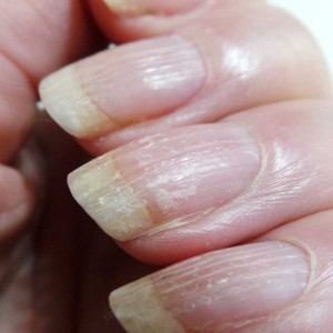 Herome-damaged-nails-yustsome5