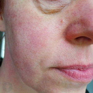 Een zijdezachte huid
