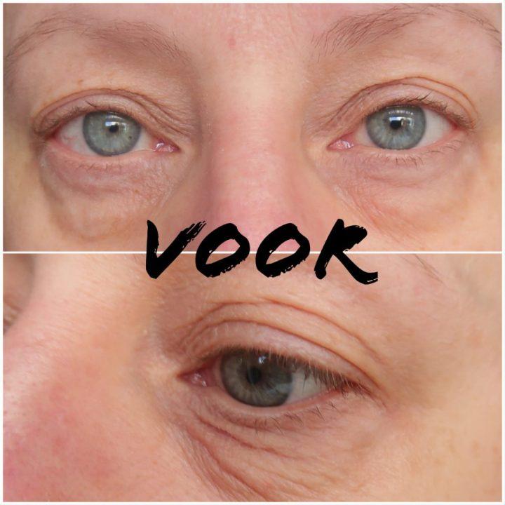 Viata, drogist, online, beauty, blog, yustsome, Wallen, eye, bags, dark, circkles, donkere, kringen, direct, resultaat, remescar, medmetics,