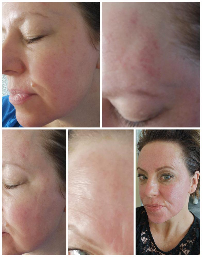 Microneedling, refleqt Clinic, refleqt, Clinic,Haarlem, behandeling,huid